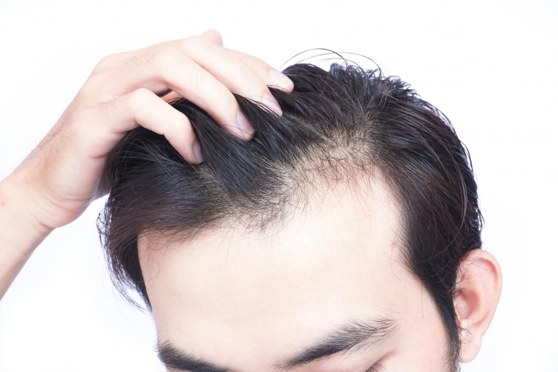 Best Hair Loss Treatment for men and women, Hair Fall Cure, Cost in Mumbai, India